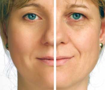 Dr. Lee Christine at The Skin and Laser Treatment Institute explains fine lines and wrinkles