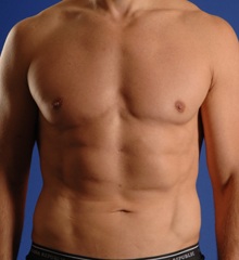 SmartLipo Walnut Creek - SmartLipo After 1