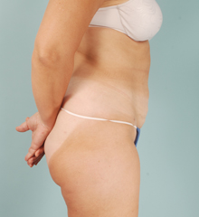SmartLipo Walnut Creek - SmartLipo After 2