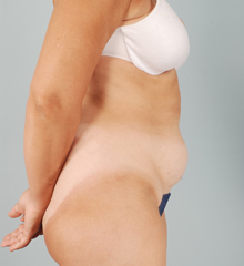 SmartLipo Walnut Creek - SmartLipo Before 2