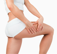 Cellulite Reduction Treatment In Bay Area - Cellulite Reduction Treatment