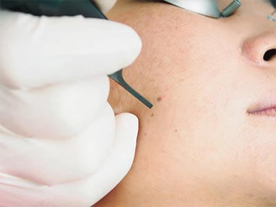 Co2 Laser Skin Resurfacing Bay Area - Article Image at The East Bay Laser & Skin Care Center
