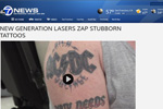 New generation lasers zap stubborn tattoos