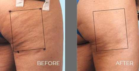 Cellulaze Treatment - Before After Picture 01
