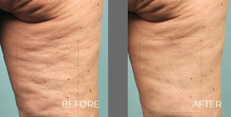 Cellulaze Treatment - Before After Picture 02