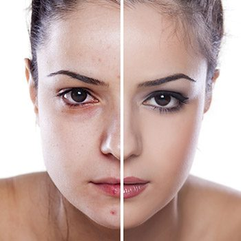 Get help at the acne clinic