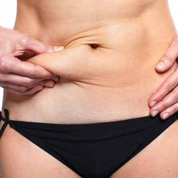 Enjoy non-invasive fat removal with Vanquish in Walnut Creek, CA