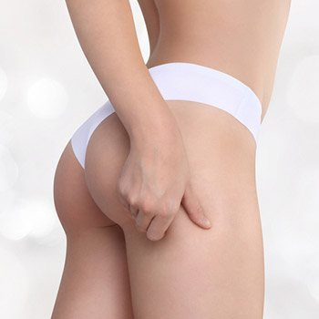 Is cellulite treatment effective for Walnut Creek, CA area patients?