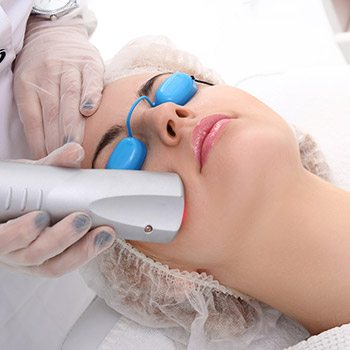 Bay area patients discover the CO2 laser for skin resurfacing