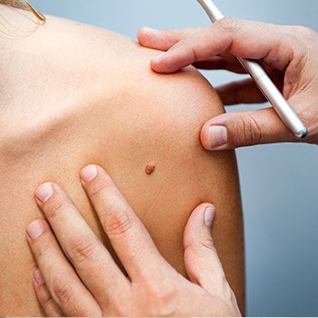 Exploring skin cancer treatment with Dr. Lee