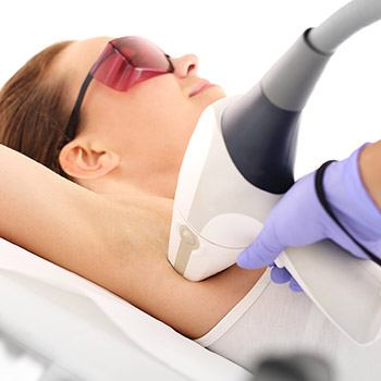Permanent laser removal of unwanted hair