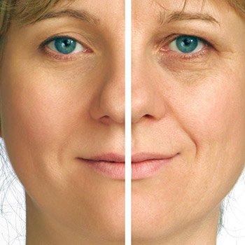 Renew your skin with laser rejuvenation