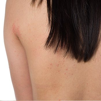 Precise ways to treat skin cancer