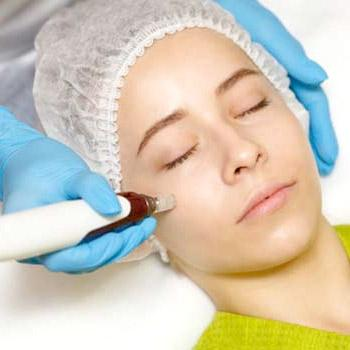 Walnut Creek, CA dermatologist suggests microneedling treatment for glowing skin