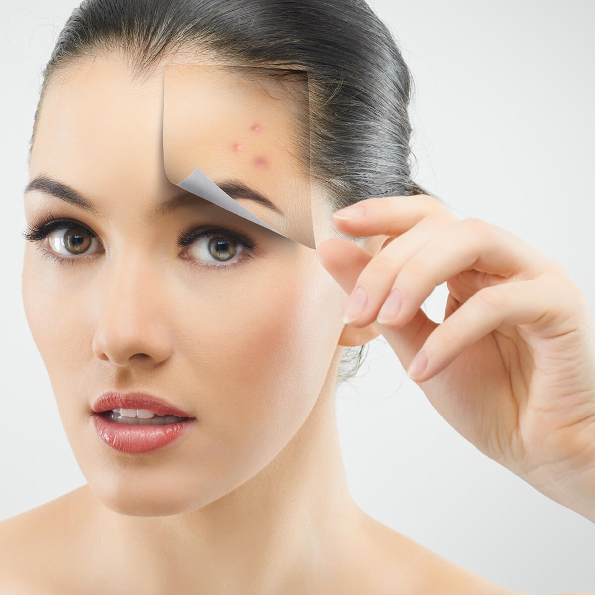 Learn More About Acne Scar Treatment Using Lasers, Chemical Peels, and Fillers with Walnut Creek, CA Area