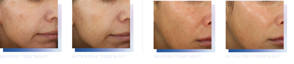 Glacial Rx™ in Walnut Creek CA Real patient before and after results